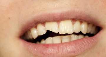 He perdido un diente jugando al fútbol… ¿Cómo lo arreglo?